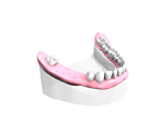 Remplacer plusieurs dents