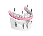 Remplacer toutes les dents absentes