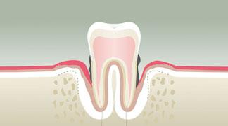 Parodontologie & Hygiène à Malzéville